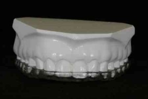 teeth splint mold