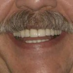 oral reconstructive surgery