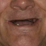 fixing neglected teeth