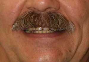 This patient suffered from GERD (Gastroesophogeal Reflux Disease) where stomach acids would come back up and into his mouth, causing erosion of the tooth structure. Additionally, he had a habit of clenching and grinding his teeth. Combined with the refluxed acid, the grinding resulted in severe wear of his natural teeth as well as sensitivity when eating some of his favorite foods.