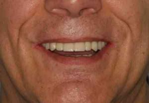 restored jaw